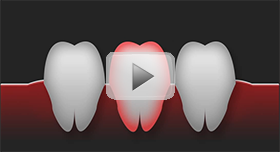 Tooth-Replacement-Townsville-video